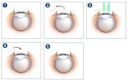 LASIK procedure